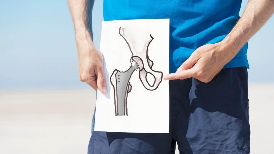Hip Replacment Dublin Physio & Chiropractic